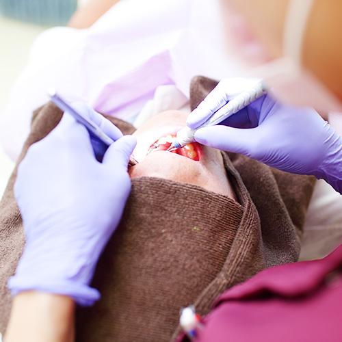 二子玉川の予防歯科