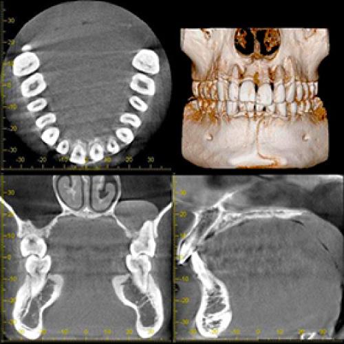 歯科用CTによる精密診断
